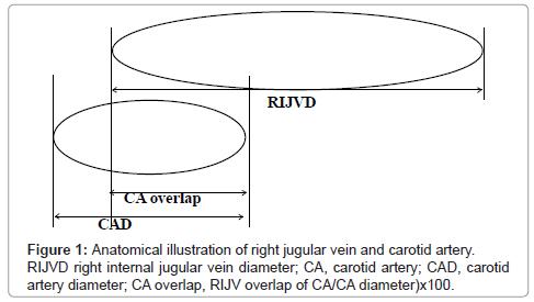 Ist Kopf Rotation bevorzugt während der rechten inneren Jugularvenen ...