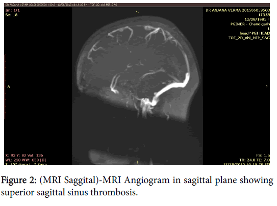 anesthesia-clinical-research-Angiogram-sagittal