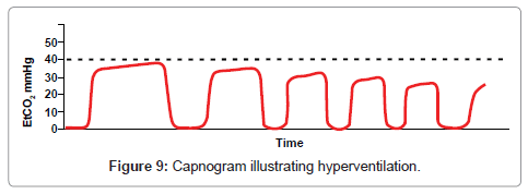 anesthesia-clinical-research-Capnogram-hyperventilation