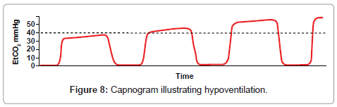 Capnography Primer for Oral and Maxillofacial Surgery