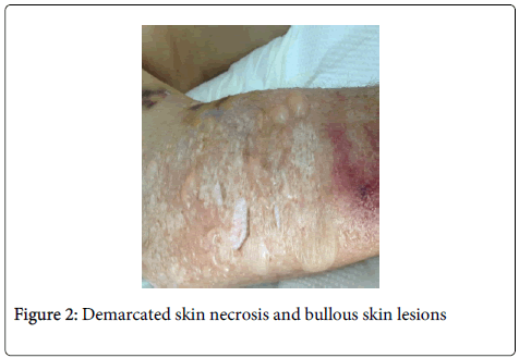 anesthesia-clinical-research-Demarcated-skin