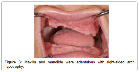 anesthesia-clinical-research-Maxilla-mandible