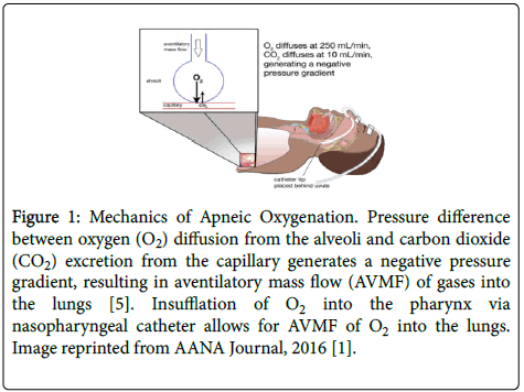 anesthesia-clinical-research-Mechanics-Apneic-Oxygenation