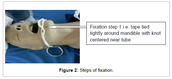anesthesia-clinical-research-Steps-fixation