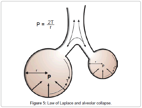anesthesia-clinical-research-alveolar-collapse