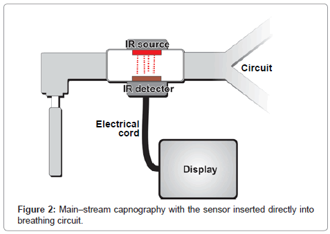 anesthesia-clinical-research-breathing-circuit