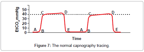 anesthesia-clinical-research-capnography-tracing