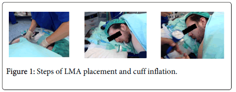 anesthesia-clinical-research-cuff-inflation