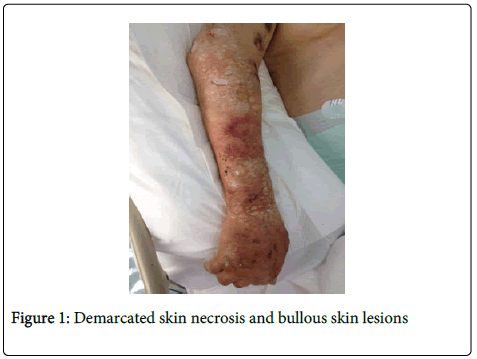 anesthesia-clinical-research-skin-necrosis