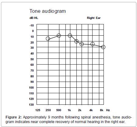 anesthesia-clinical-tone-audiogram