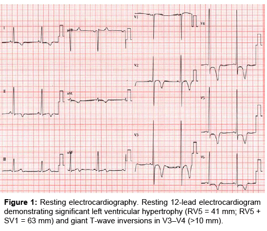 angiology-Resting-electrocardiography