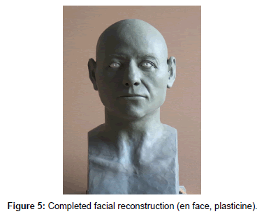 anthropology-Completed-facial