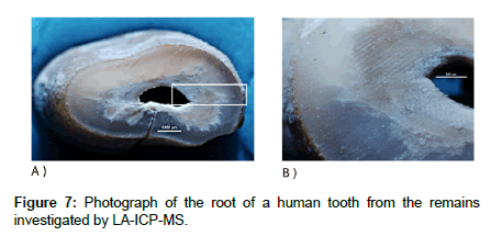 anthropology-human-tooth