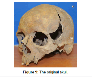 anthropology-original-skull