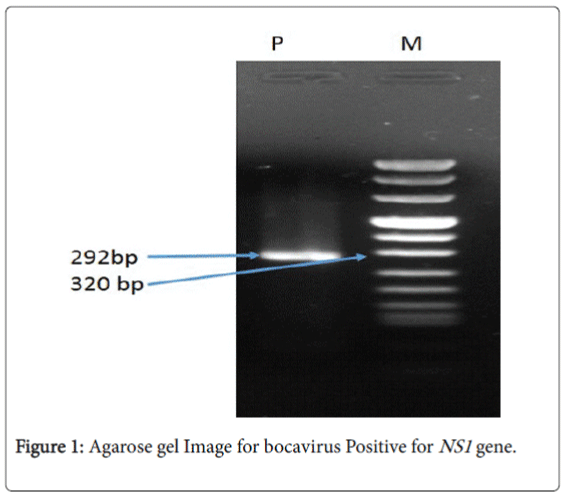 antimicrobial-agents-Agarose-gel-Image