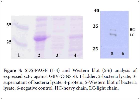 antivirals-antiretrovirals-western-blot-bacteria