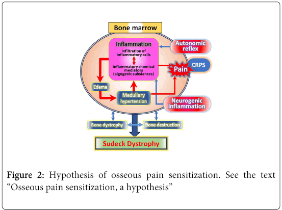 arabian-journal-business-management-review-Hypothesis-osseous-pain
