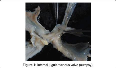 Morphological Variations Of The Internal Jugular Venous Valve