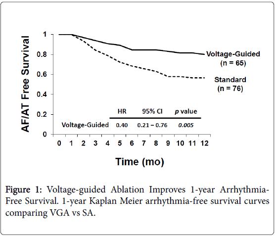 arrhythmia-Voltage-guided