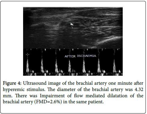 arthritis-brachial-artery