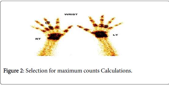 arthritis-maximum-counts