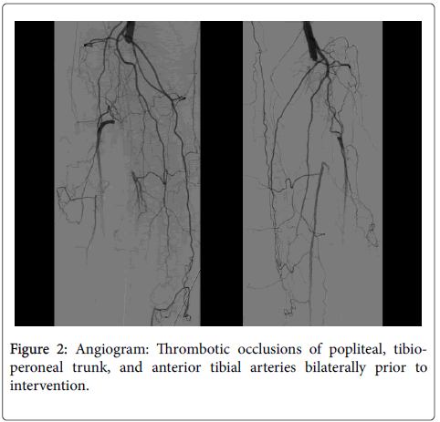 atherosclerosis-Thrombotic-occlusions