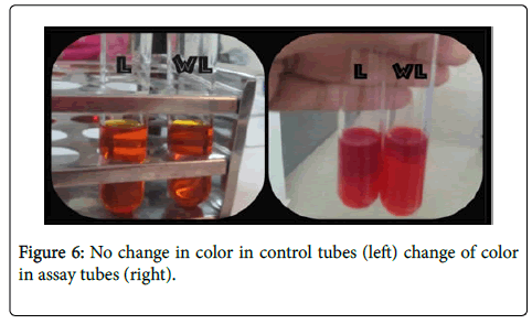 bacteriology-parasitology-color-tubes