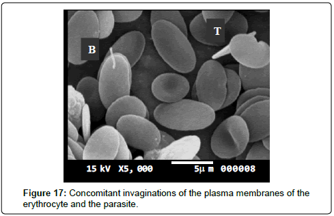 bacteriology-parasitology-elongate-erythrocyte