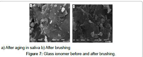 bioceramics-development-applications-Glass-ionomer