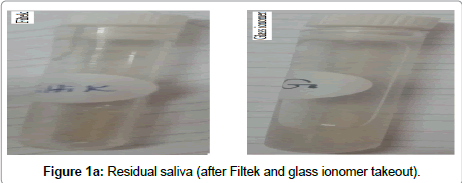 bioceramics-development-applications-Residual-saliva