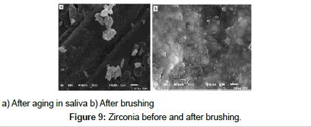bioceramics-development-applications-Zirconia
