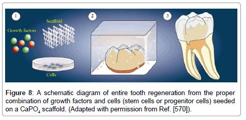 bioceramics-development-applications-schematic-diagram-entire-tooth