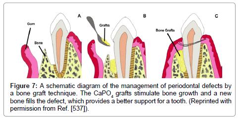 Calcium Orthophosphates (CaPo4) and Dentistry | OMICS