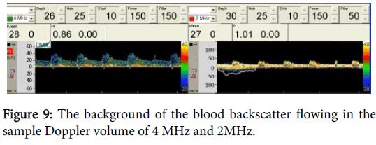 bioengineering-biomedical-science-blood-backscatter-doppler