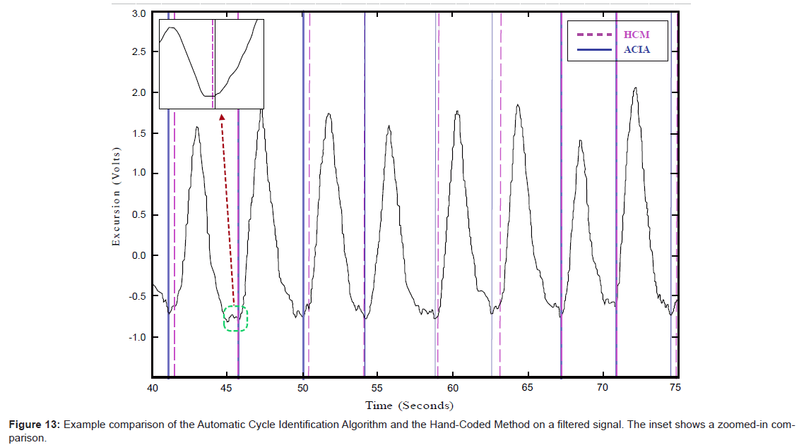 bioengineering-biomedical-science-hand-coded-filtered-signal