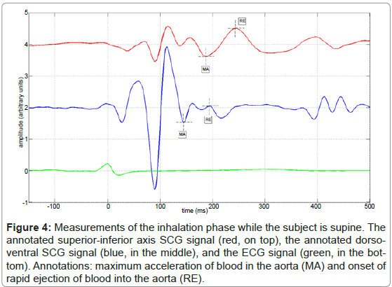 bioengineering-biomedical-science-inhalation-supine-dorsoventral
