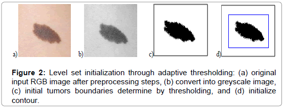 bioengineering-biomedical-science-initialization-adaptive-thresholding