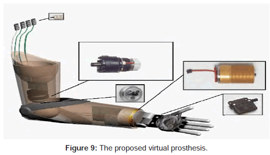 bioengineering-biomedical-science-proposed-virtual-prosthesis