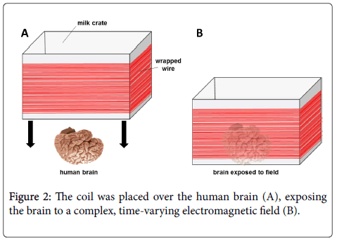 biology-and-medicine-brain