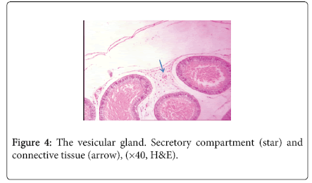 biology-and-medicine-vesicular-gland