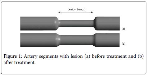 biology-medicine-Artery-segments-lesion