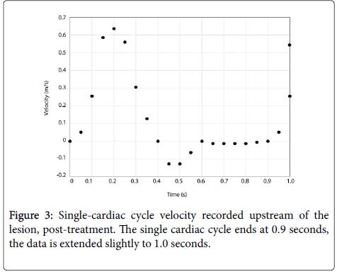 biology-medicine-Single-cardiac-cycle
