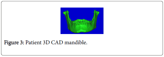 biology-medicine-patient-CAD-mandible