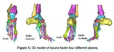 biomimetics-biomaterials-tissue-engineering-bound-footin