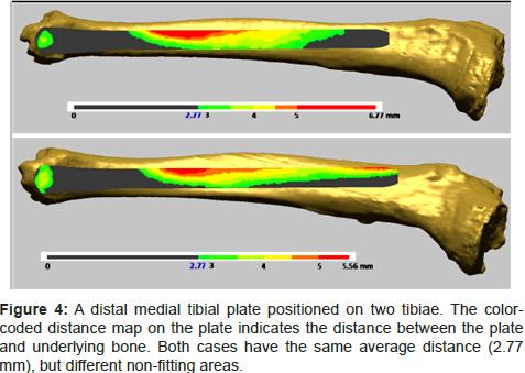 biomimetics-biomaterials-tissue-engineering-tibial-plate-positioned