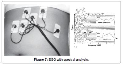 biomusical-engineering-EGG-spectral-analysis