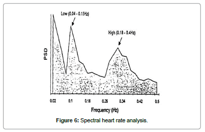 biomusical-engineering-Spectral-heart-rate-analysis