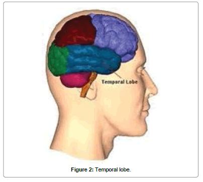 biomusical-engineering-Temporal-lobe