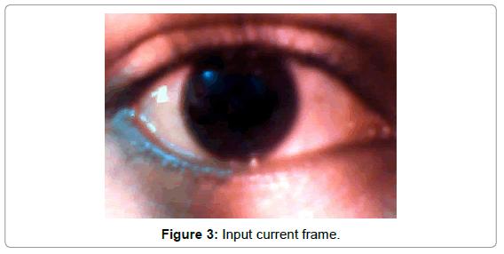 Eye Ball Movement to Control Computer Screen | OMICS