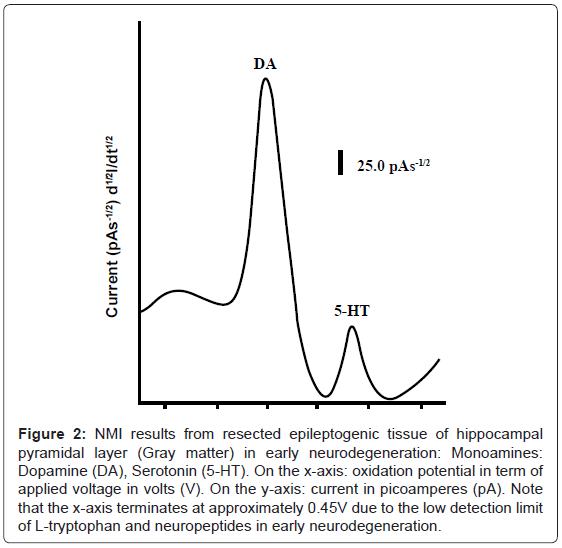 biosensors-bioelectronics-resected-epileptogenic-tissue